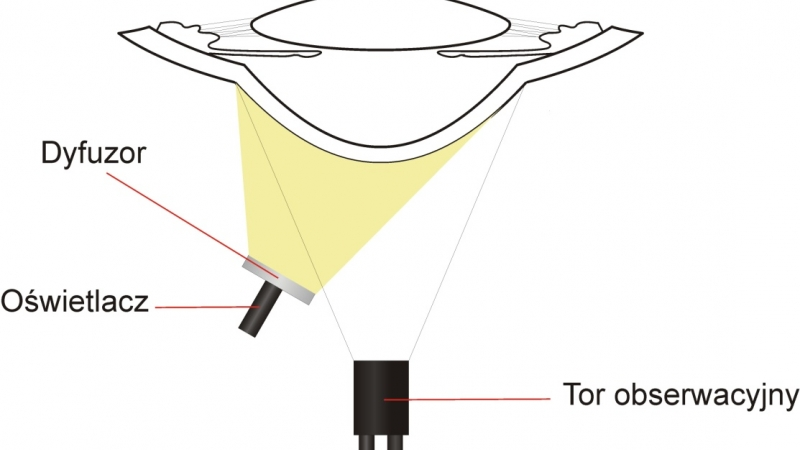 Lampa szczelinowa