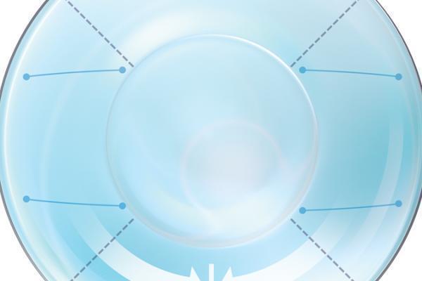 Optymalna geometria soczewki torycznej